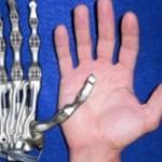 Bionic_hand_VISE-250x178